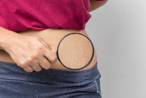 Can Stretch Marks Be Covered With Tattooing? - Numbskin